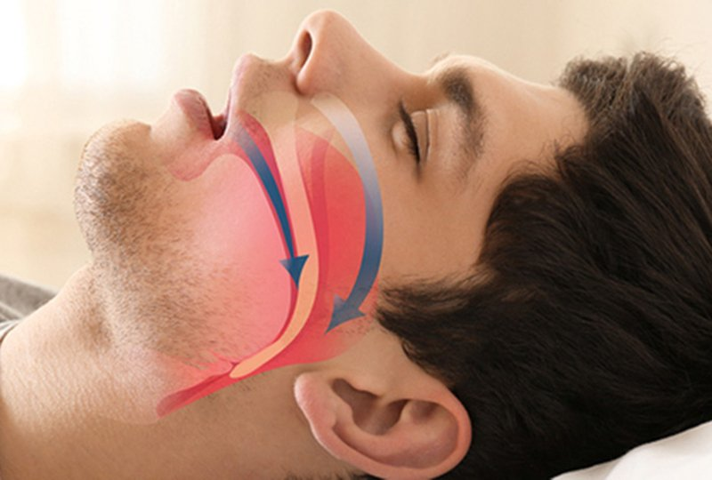 How does Sleep Apnea Occur?